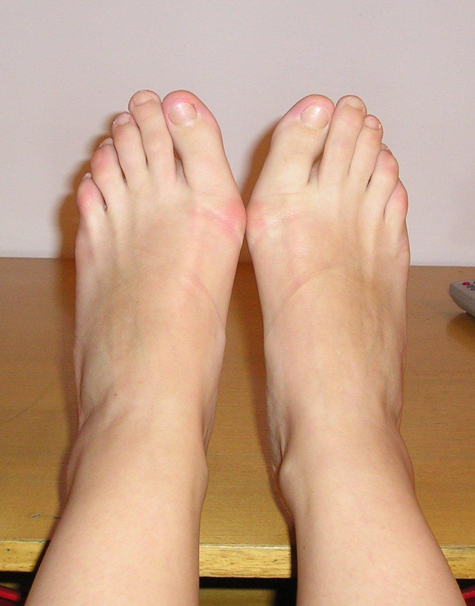 Dolori al piede, occhio alla postura. Gli esercizi per risolvere