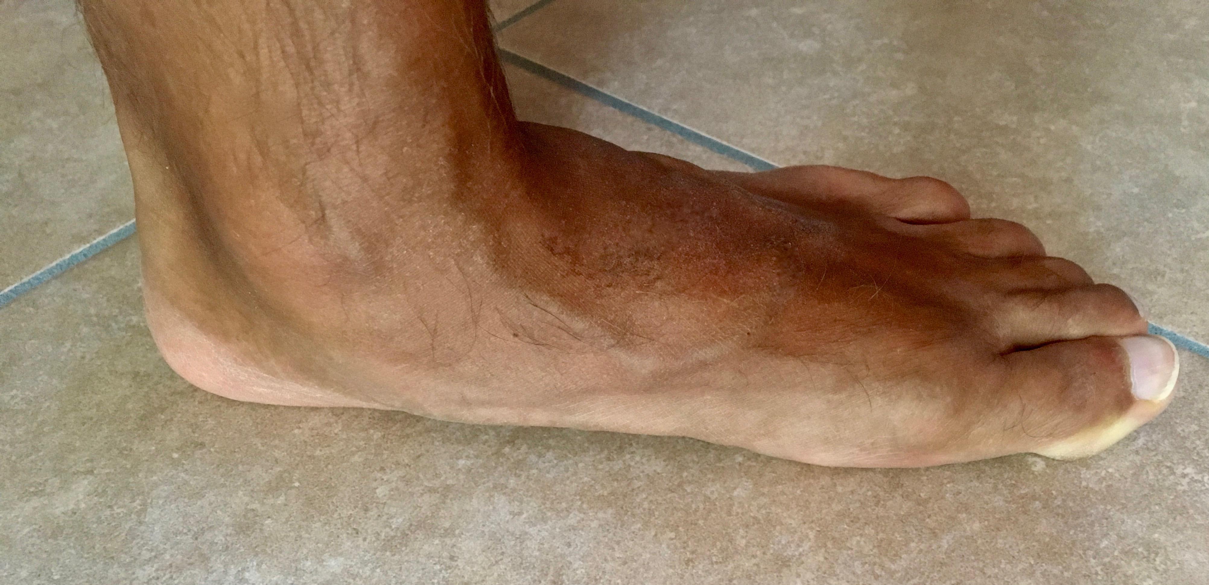 Dolore al piede: quali sono le cause e terapie adeguate