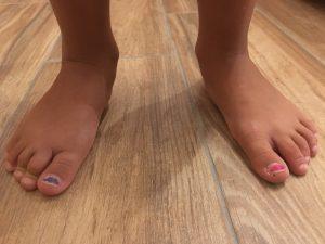 Ecco la verità sui piedi piatti che nessuno ti dirà mai... 07b56113ebe