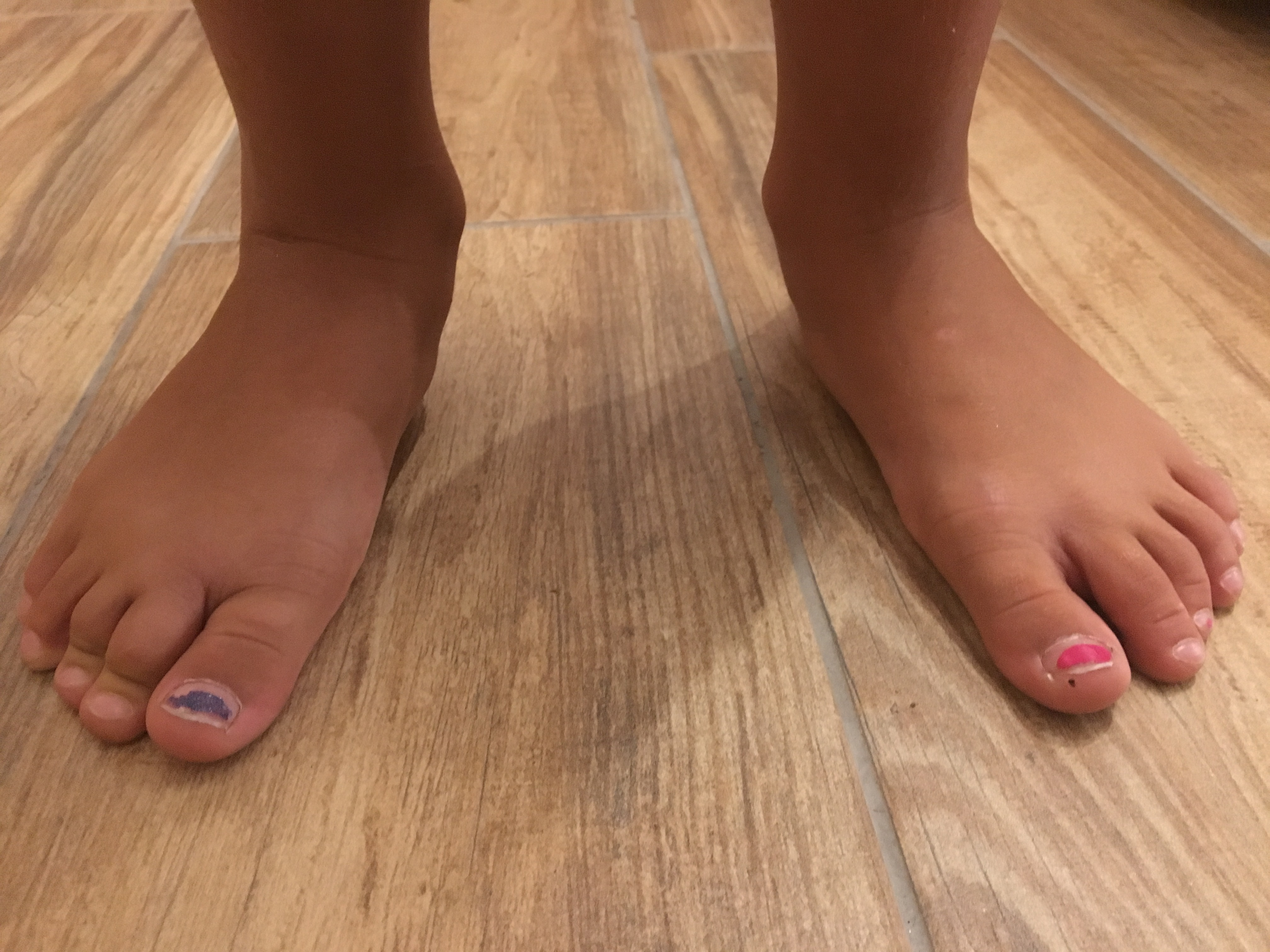 Ecco la verità sui piedi piatti che nessuno ti dirà mai...